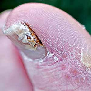 How to Prevent Nail Fungus