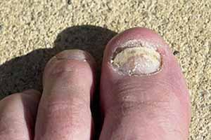 Foot Nail Fungus