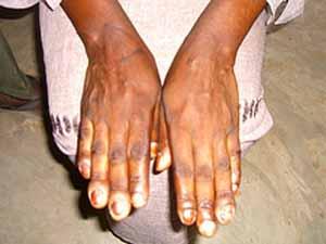 Nail Fungus Symtoms
