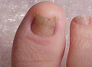 Nail Fungus Homeopathic Treatment