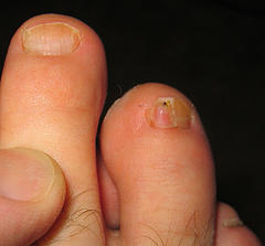 Natural Remedy of Nail Fungus