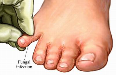 Symptoms of Nail Fungus