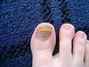 Toenail Fungus Treatment: Home Remedies for Toe Nail Fungus Cure
