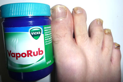 Vapor Rub To Treat Toe Nail Fungus | TreatNailFungus.org